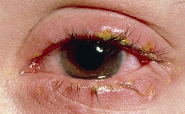 Nên hay không nên khi chữa bệnh đau mắt bằng mật ong